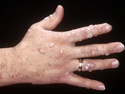 human papillomavirus is warts