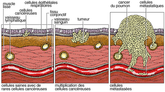 cancer maligne du poumon