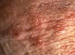 HPV, pericol tacut
