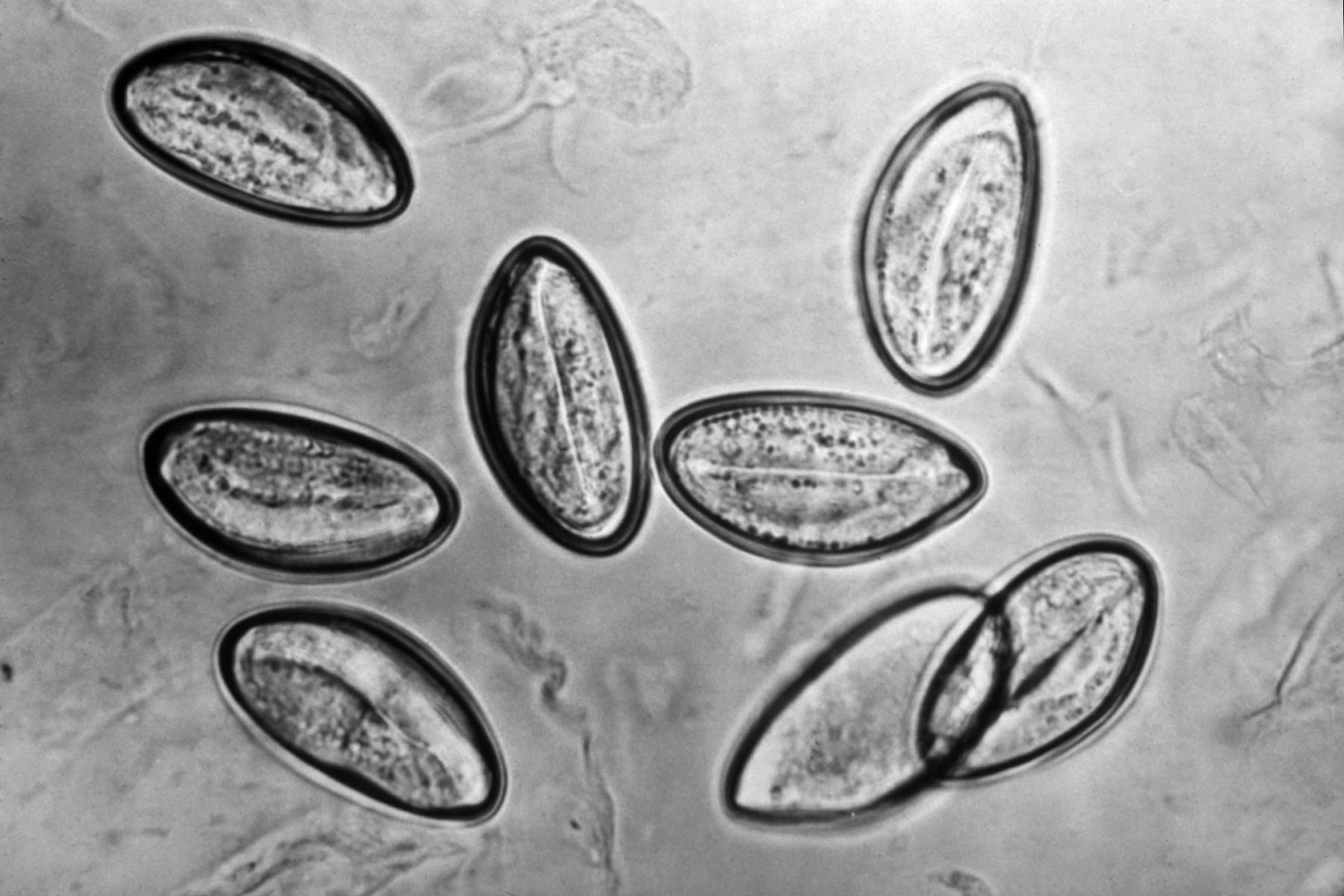 Oxyuris vermicularis cdc - Structura paraziților apicomplexan