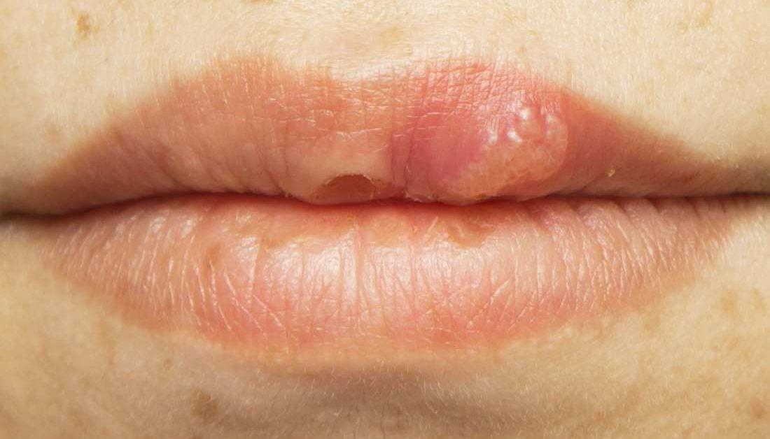 hpv mouth cold sores formarea polipilor și a verucilor genitale