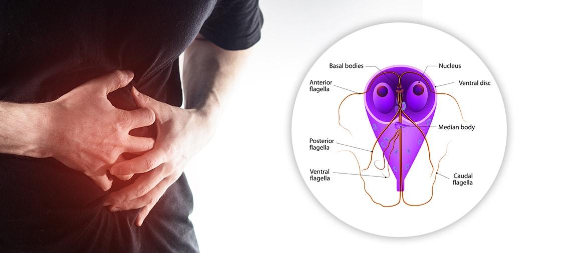 infecții cu giardia