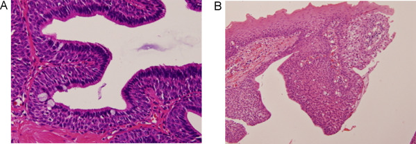 Ductal papilloma of salivary gland,