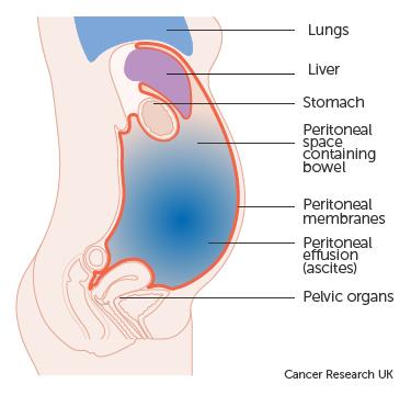 peritoneal cancer back pain