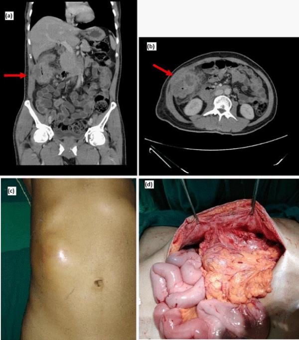 Cancer of peritoneal cavity, Cancer peritoneal cavity - KudoZ™ translation help