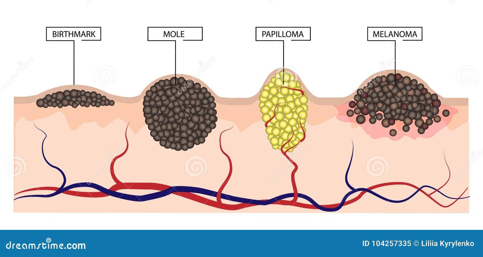 Papilloma and moles Hpv warts when pregnant