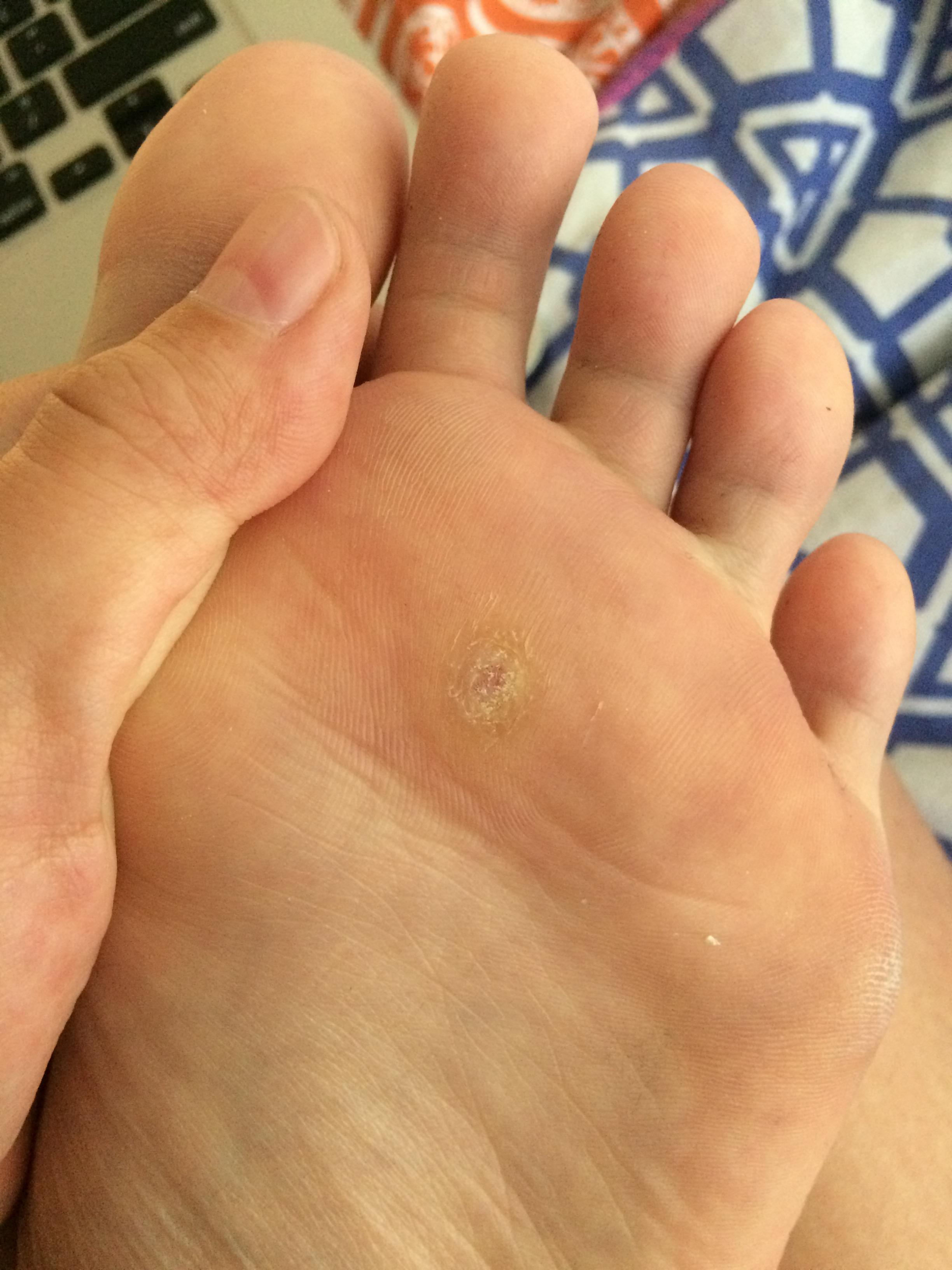 Wart removal foot duct tape,