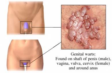 condiloame pe pereții uterului