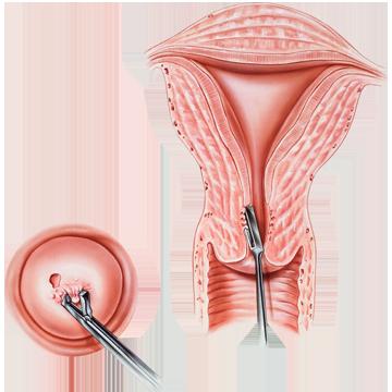 plathelminthen und nematoden spanac la blender