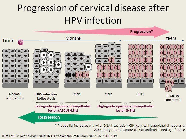 hpv cure development