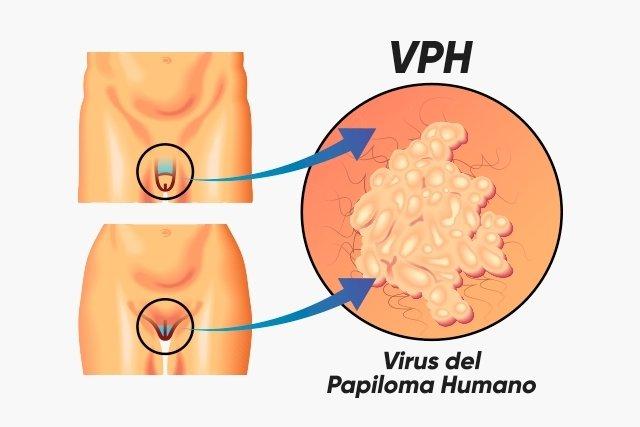 condiloamele genitale infectia cu hp