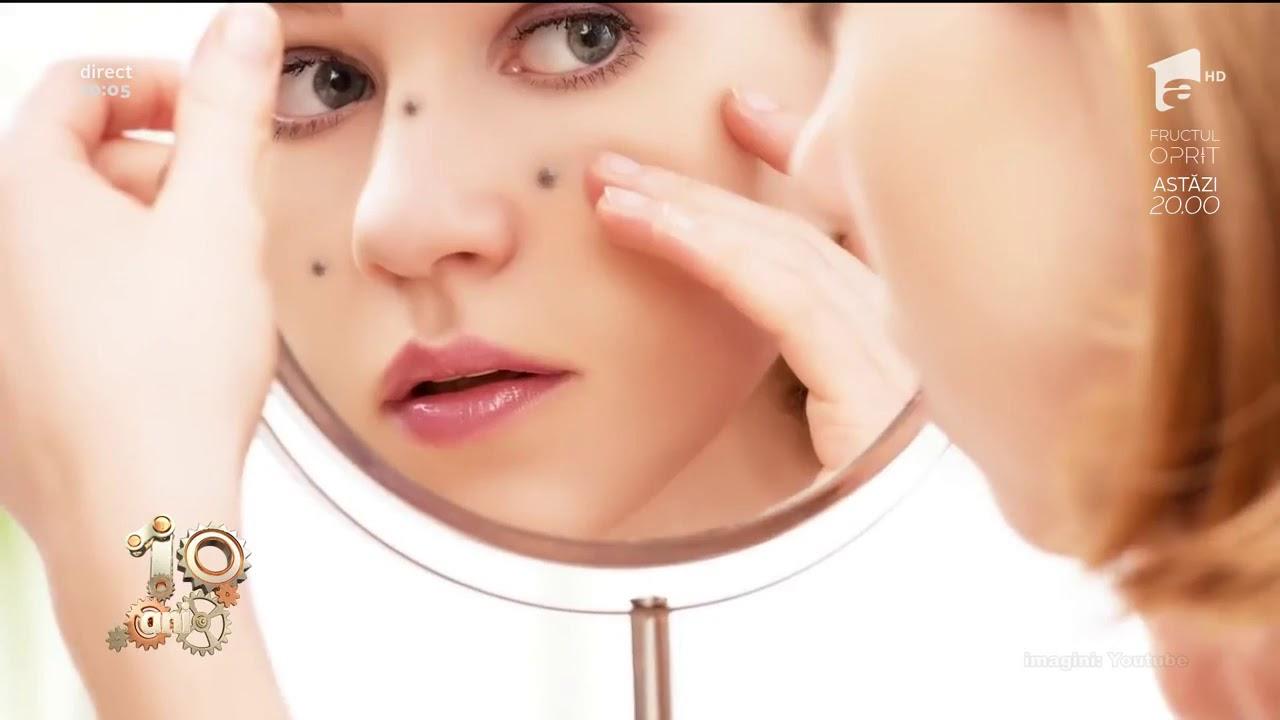 Ce sunt aftele şi ulceraţiile mucoasei bucale?