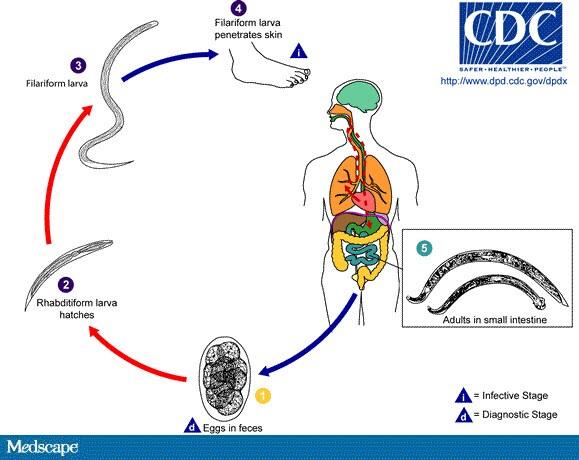 Diagrama ciclului de viață pinworms