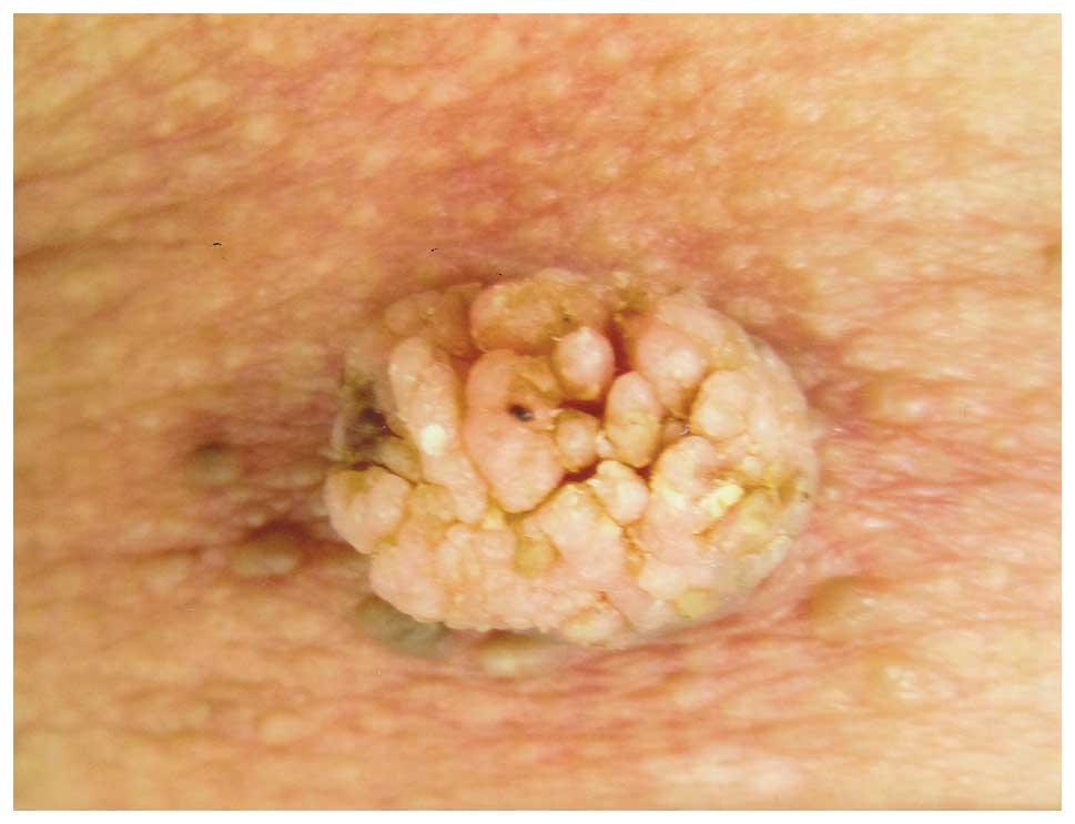 papillary verrucous lesion