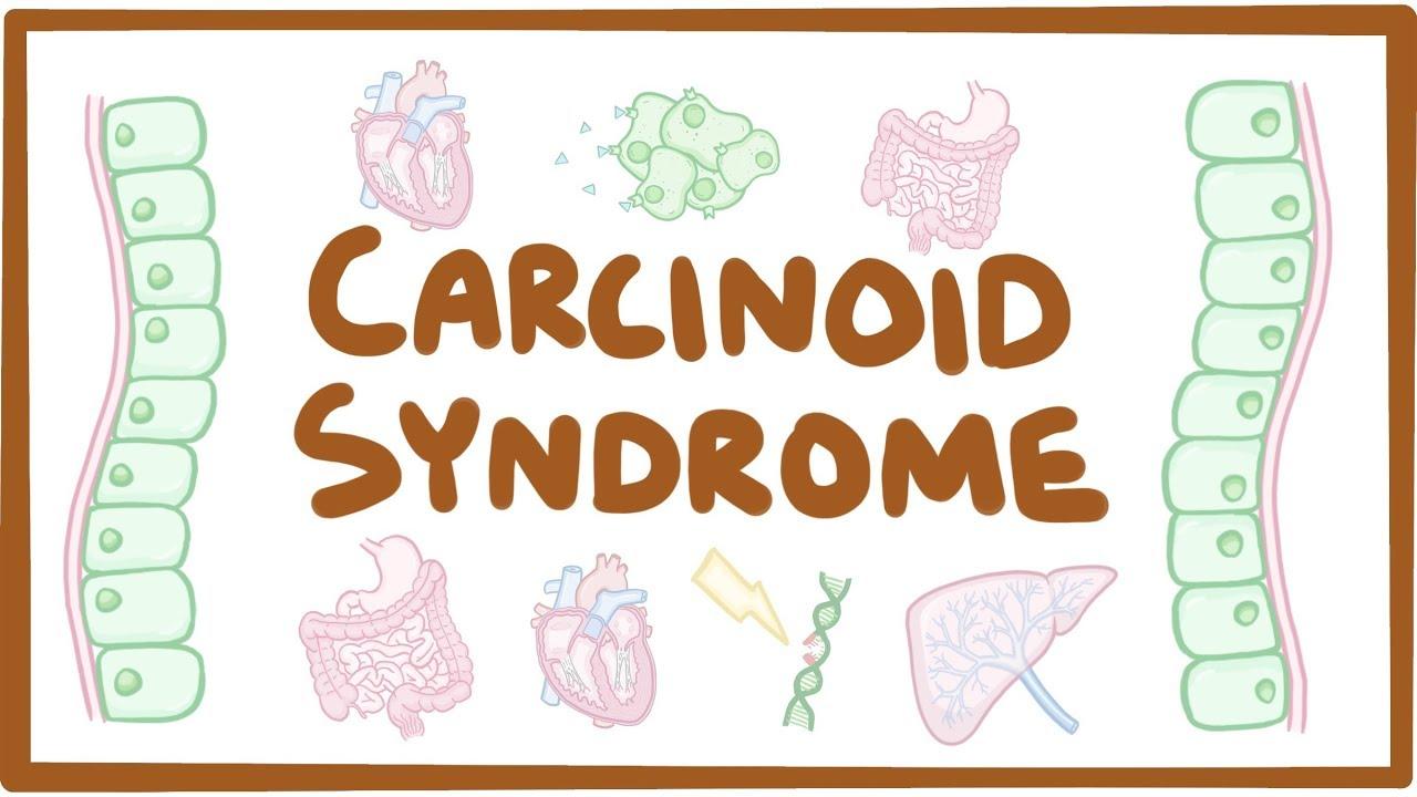 neuroendocrine cancer diarrhea hpv szemolcs labon