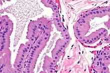 Papillary lesion with apocrine metaplasia, Human papillomavirus medical definition