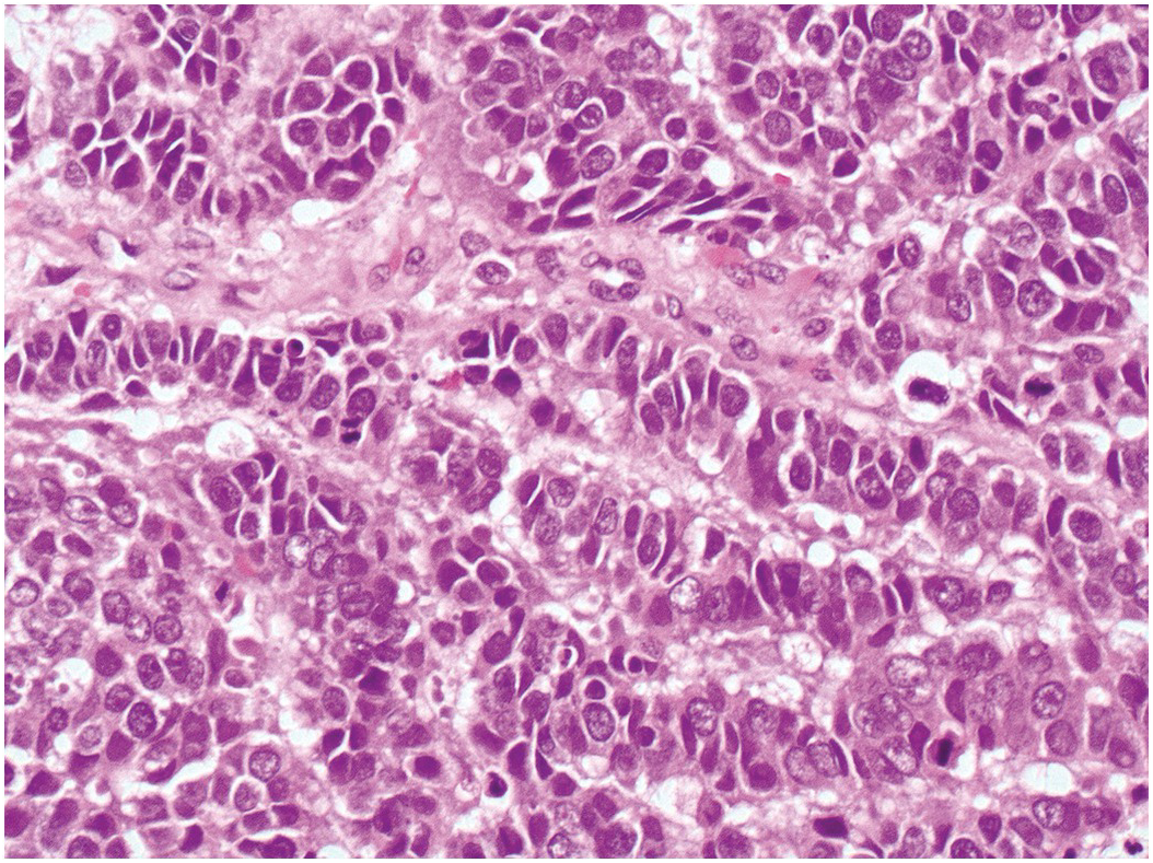 METACHRONOUS LUNG CANCER - CASE PRESENTATION | The Medical-Surgical Journal