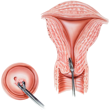 îndepărtarea condilomului colului uterin cancer bucal que es
