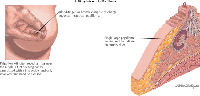 Intraductal papilloma discharge - csrb.ro - Duct papilloma discharge
