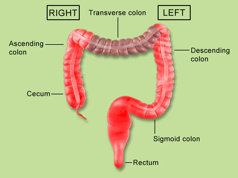 Rectal cancer medscape, Rectal cancer and colon cancer