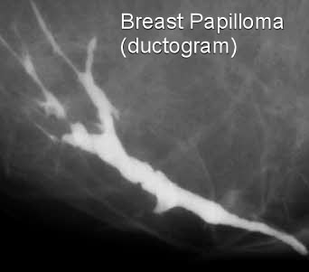 intraductal papilloma treatment