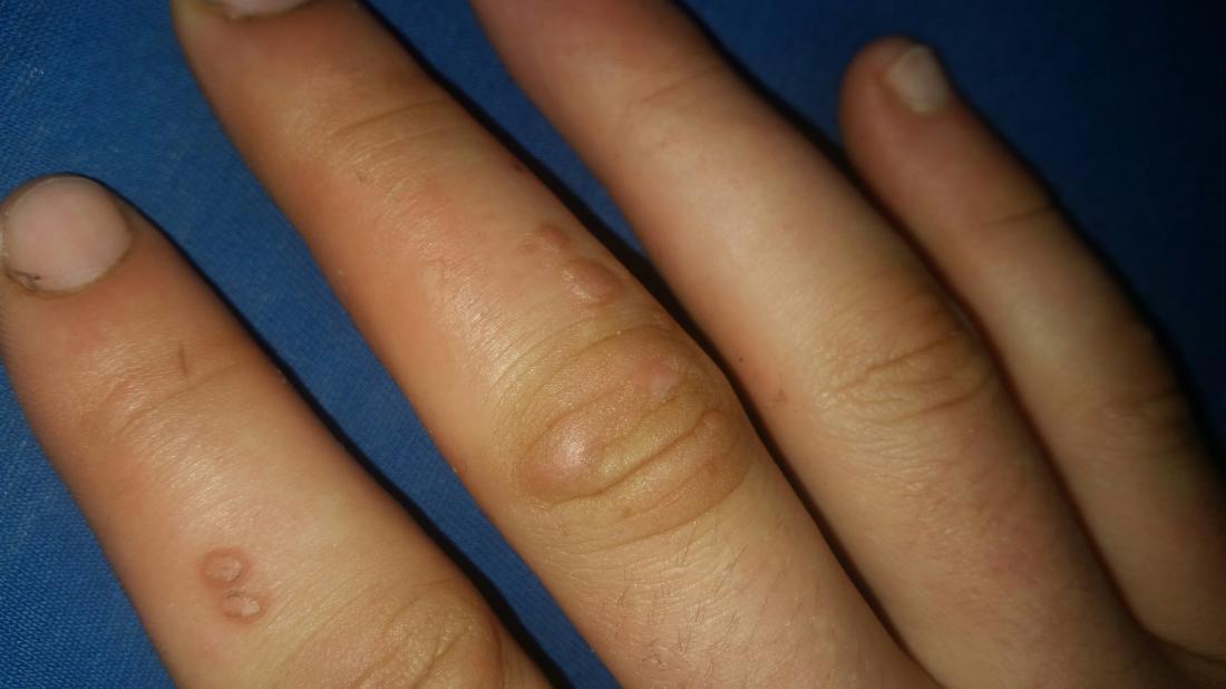 hpv wart finger