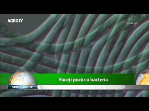 Scotch-test sau testul cu banda adeziva pentru viermii intestinali | csrb.ro