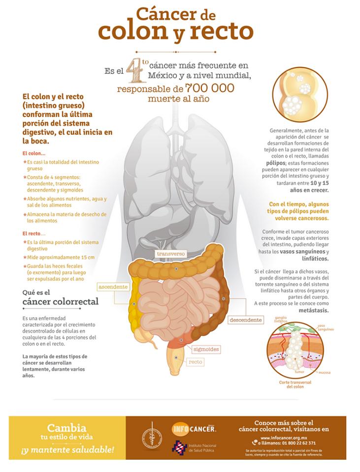 Cancer de colon en la mujer