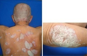 papilomatosis en la piel