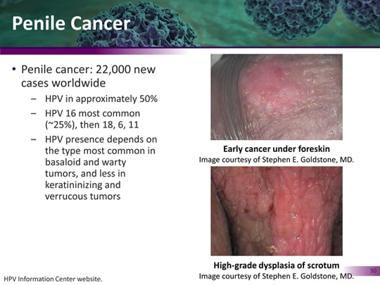 hpv 16 cancer male