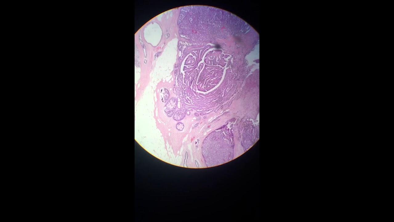 cancer mamar mucinos