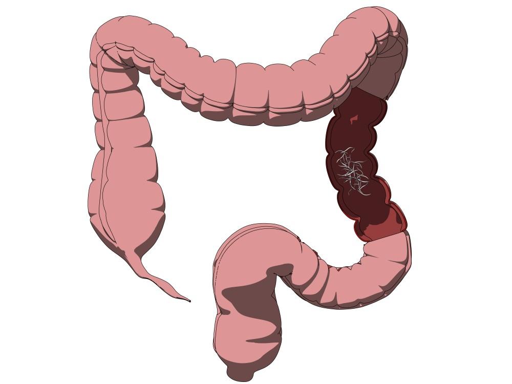 tratamentul viermilor la adulți în timpul sarcinii viermi în anus, cum să scapi