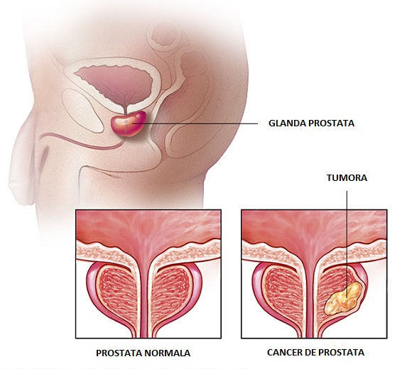 cancer de prostata simptome tratament sunt cele mai eficiente medicamente pentru viermi