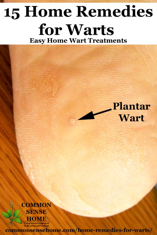 warts urine treatment