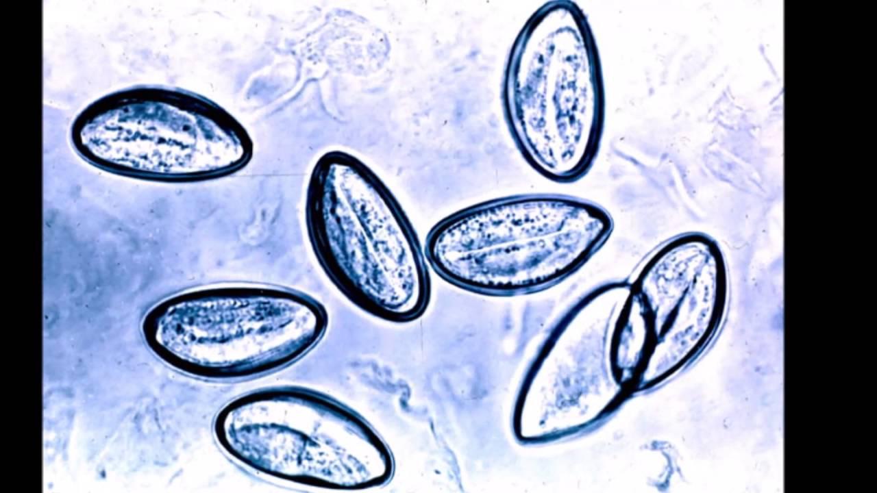 Que enterobiasis. Enterobiasis sintomas y tratamiento enterobiasis
