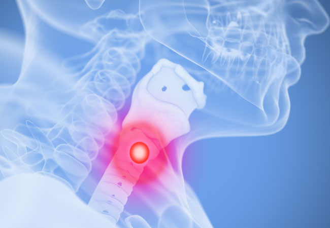 Oropharynx cancer and hpv, Hpv-positive oropharyngeal cancer treatment.