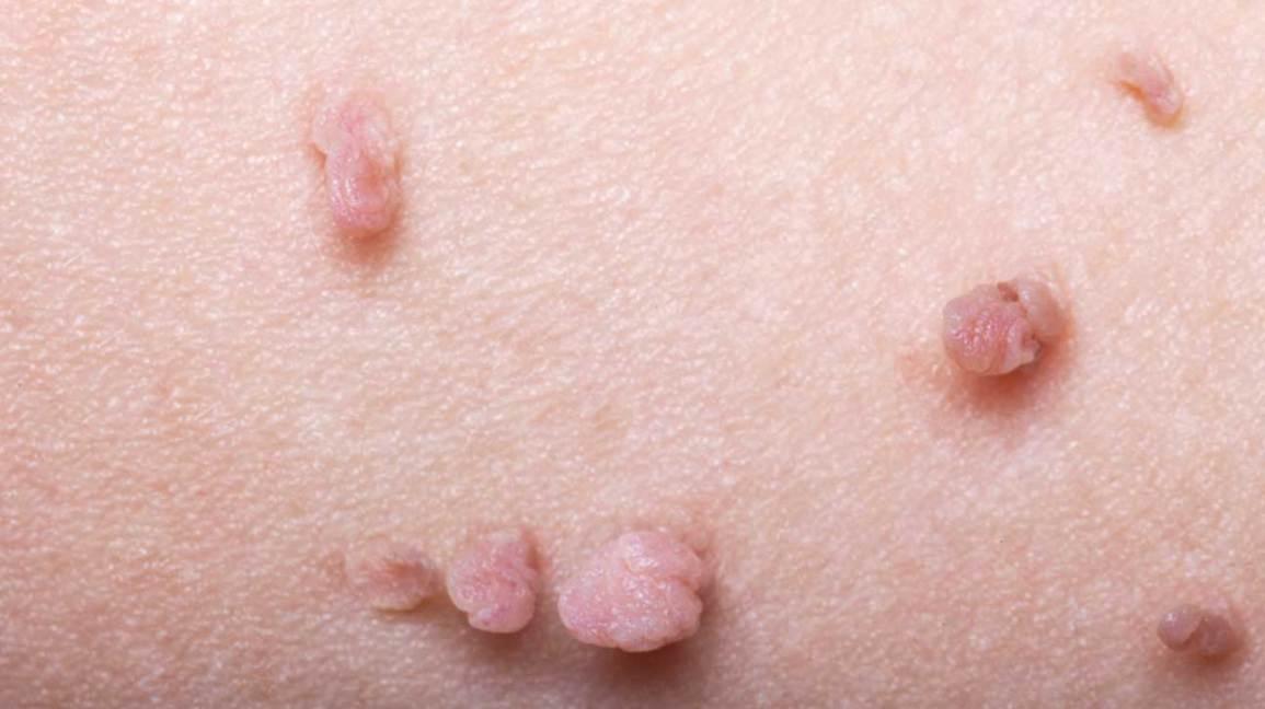 Wart skin bumps, Bump vena picior
