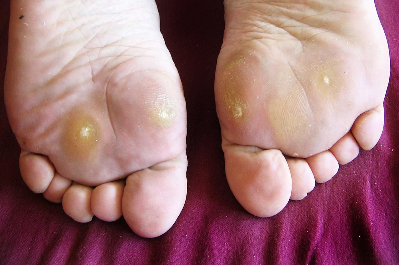 wart on foot no pain