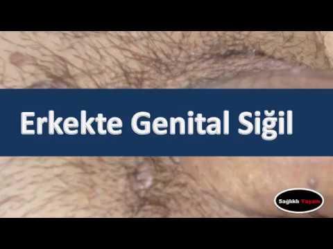 hpv genital sigil kremi