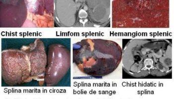 paraziți în simptomele și tratamentul splinei umane
