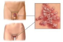 Crioterapia ca metoda de tratare a leziunilor pielii!
