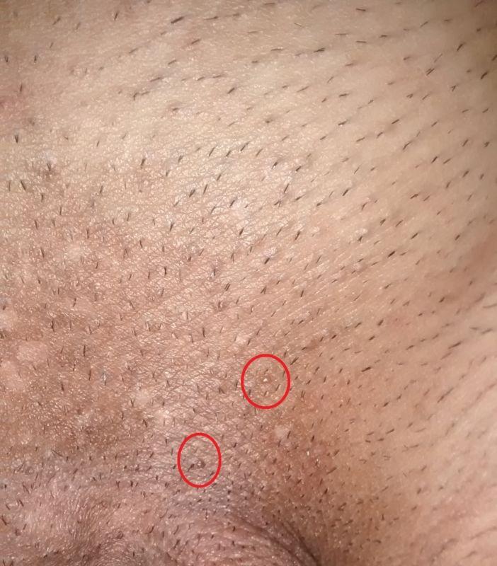 papiloma genitala tehnici holistice de curatare a ficatului