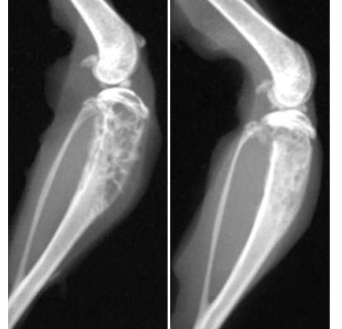 metastatic cancer bone