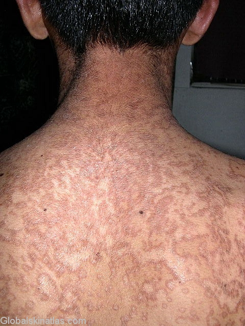 Tratamentul cu psoriazis sublimat Confluent and reticulated papillomatosis natural treatment