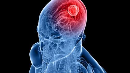 Tumorile cerebrale: simptome, diagnosticare si tratament
