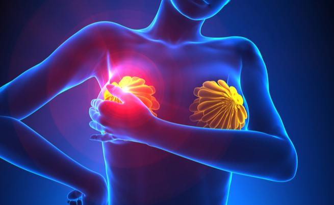 nodulo papilloma al seno hpv virus strains 16 18