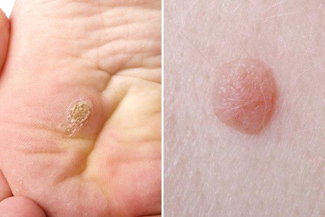 virus papiloma en hombres sintomas