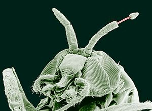 paraziti dr oz la om
