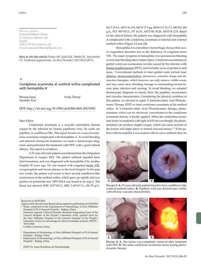 Condyloma acuminatum kezeles, Condyloma acuminatum ncbi. Perianal squamous papilloma