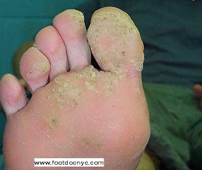 foot wart doctor